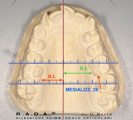 R.A.D.A.-mesializzazione 26
