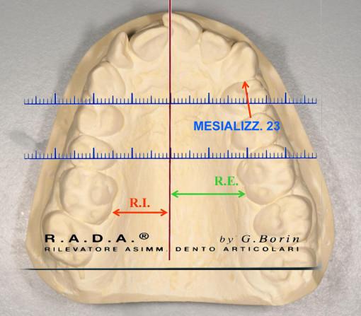 R.A.D.A.-mesializzazione-23