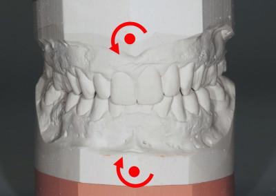 M.A.F.O. - Caso 1 - Caratteristiche di torsione sinistra