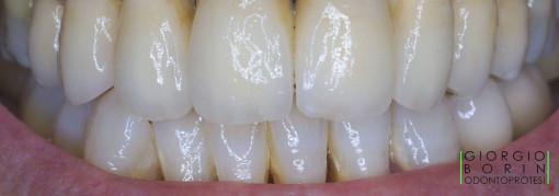 1-metal-ceramica-sorriso