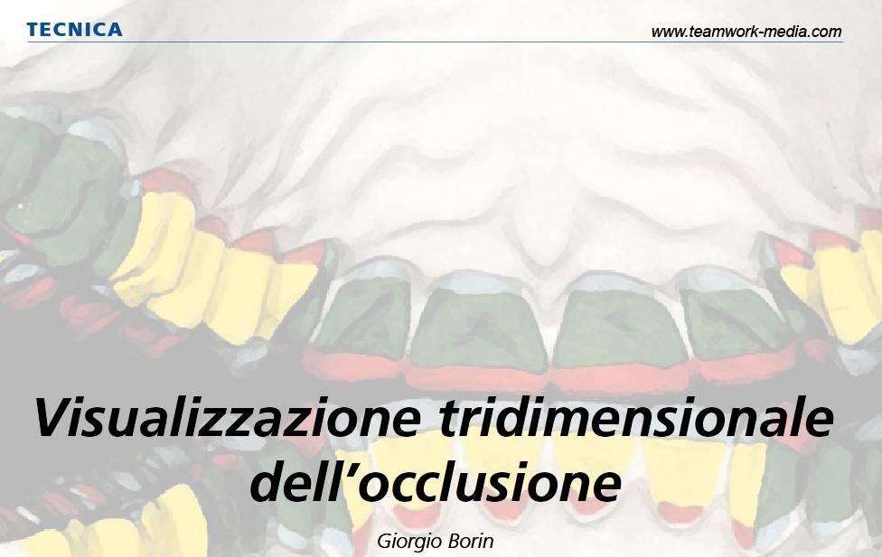 Visualizzazione tridimensionale dell'occlusione